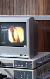 Gastroskopie